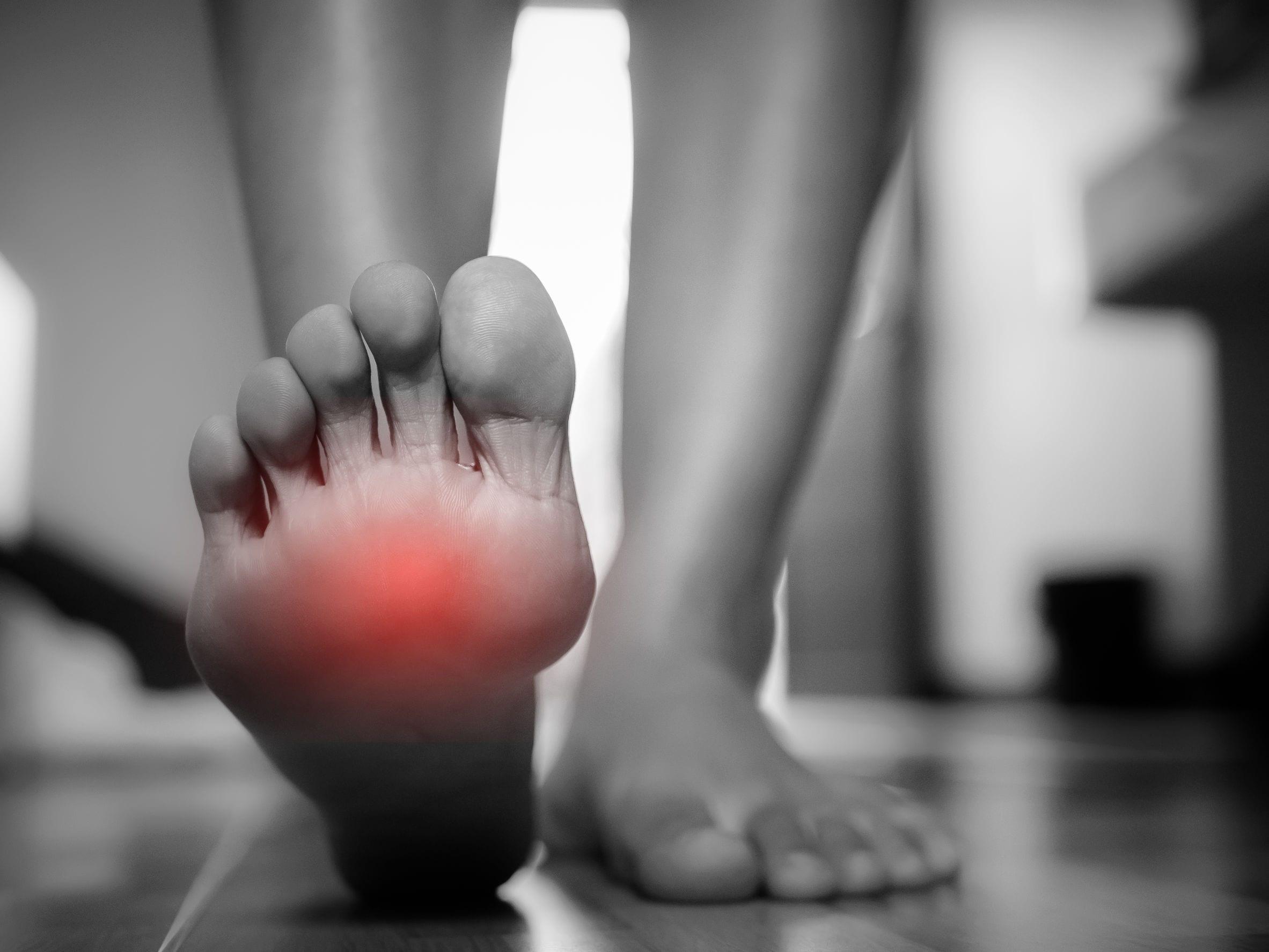 Chronic Gout