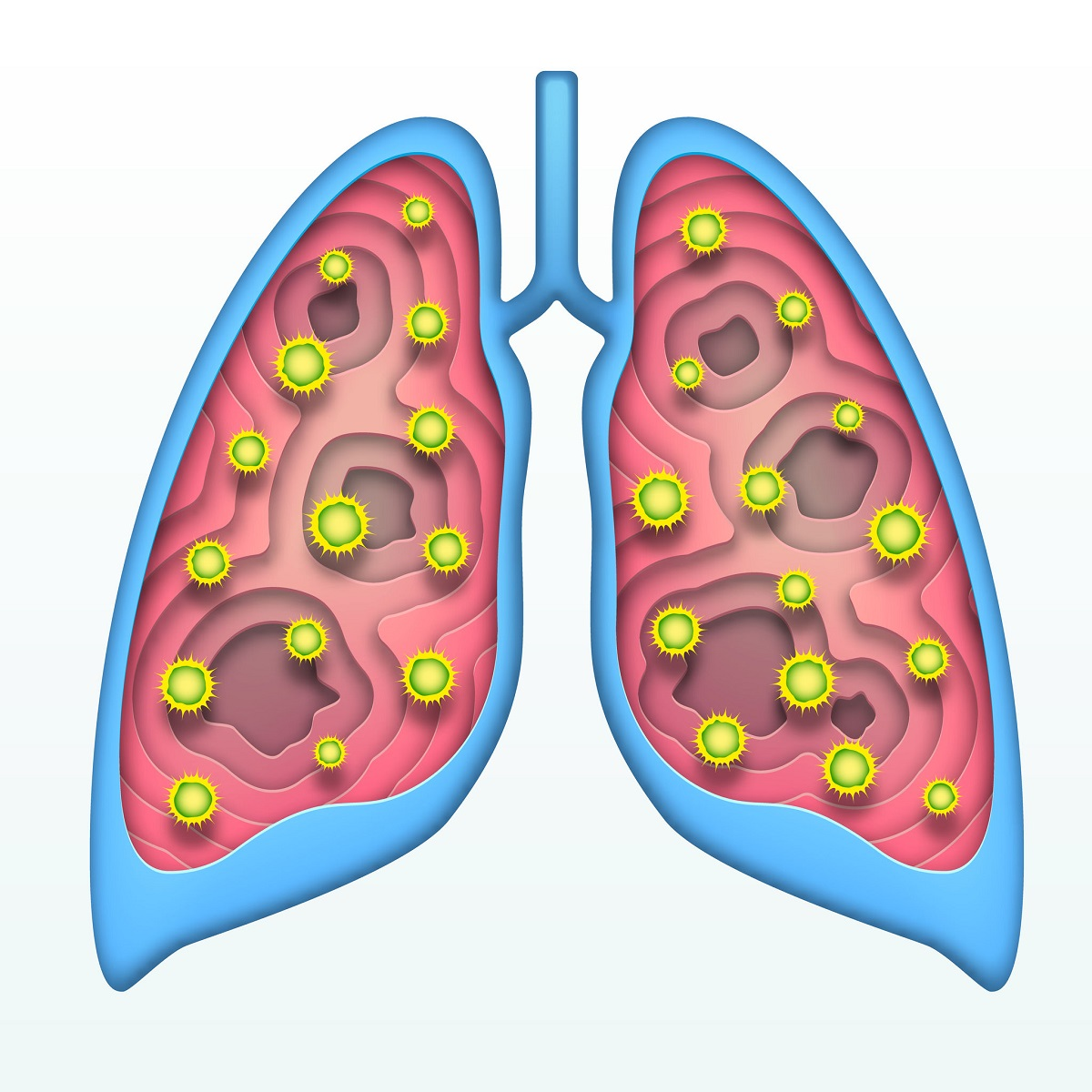 HIV 8 -  Tuberculosis (TB)